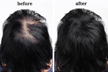 Frauenhaare nach der Verwendung von kosmetischem Pulver zur Haarverdichtung. Vorher und nachher Standard-Bild