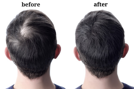 Menshair after using cosmetic powder for hair thickening. Before and after Stockfoto