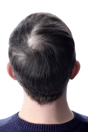 Men's hair with a bald patch before using cosmetic powder to thicken hair. White isolate.