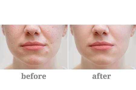 Acné en la cara de la niña. Tratamiento de la rosácea. Antes y después de.
