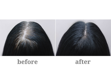 Cabeza de una niña con cabello gris negro. Coloración del cabello Parte superior de la cabeza. Antes y después de. Foto de archivo