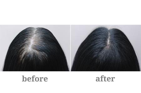Hoofd van een meisje met zwart grijs haar. Haarkleuring. Bovenkant van het hoofd. Voor en na. Stockfoto