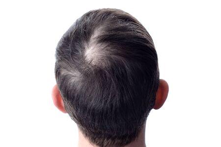 Pérdida de cabello La cabeza de un hombre calvo. Aislar blanco.