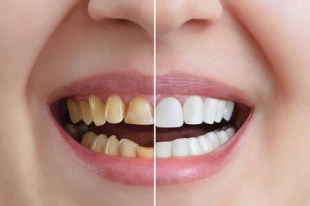 Treatment and whitening of teeth, dental crowns. Before and after. Dentistry. Close-up.