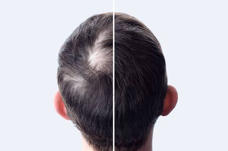 Men hair after using cosmetic powder for hair thickening. Crown with bald head. Before and after. 写真素材