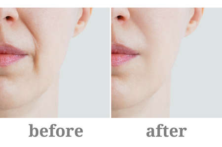 Close-up of nasolabial fold on the face of a Caucasian woman. Before and after. Cosmetology. 스톡 콘텐츠