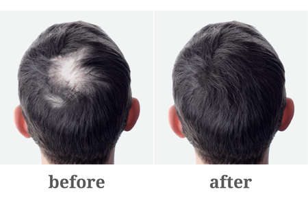 Male head with bald head and bald head. Hair transplantation and extension. Before and after.