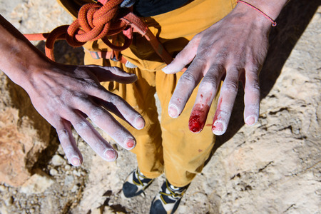 Close up injured hands of a rock climber. Blood and struggle.  Extreme sport. Outdoor activity. Stock Photo