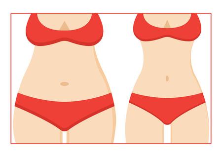 Donna grassa e snella figura in un costume da bagno rosso, prima e dopo la perdita di peso. Sagoma del corpo femminile. Vettoriali