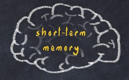 Drawing of human brain on chalkboard with inscription short-term memory. Stock fotó