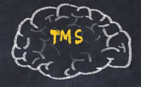 Drawind of human brain on chalkboard with inscription TMS.