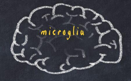 Drawing of human brain on chalkboard with inscription microglia. Banco de Imagens