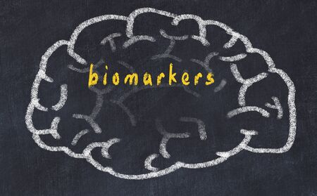 Drawing of human brain on chalkboard with inscription biomarkers.
