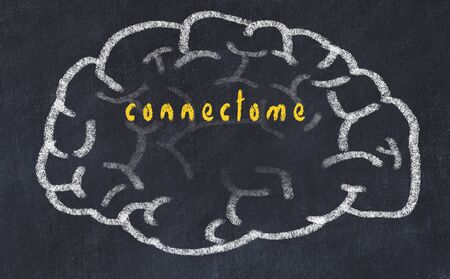 Drawing of human brain on chalkboard with inscription connectome.