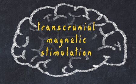 Drawing of human brain on chalkboard with inscription transcranial magnetic stimulation.