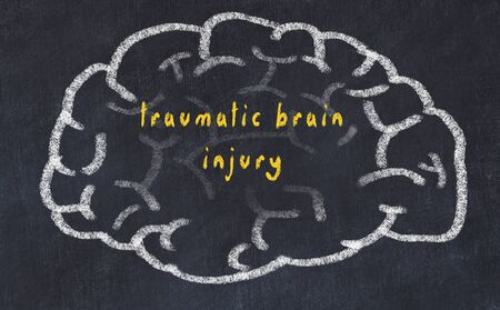 Drawing of human brain on chalkboard with inscription traumatic brain injury.