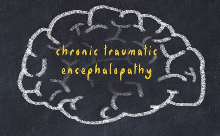 Drawing of human brain on chalkboard with inscription chronic traumatic encephalopathy. Stock Photo