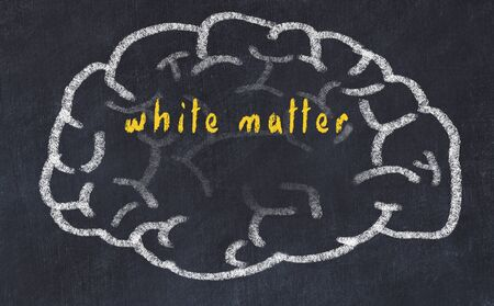 Drawing of human brain on chalkboard with inscription white matter. Stock Photo