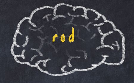 Drawing of human brain on chalkboard with inscription rod. Stock Photo