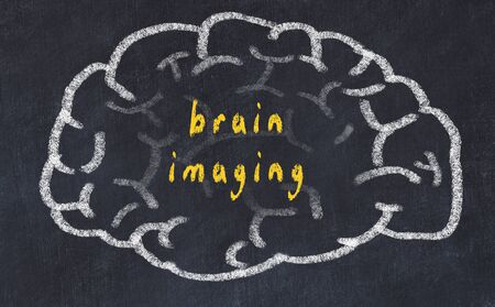 Drawing of human brain on chalkboard with inscription brain imaging.