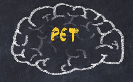 Drawing of human brain on chalkboard with inscription PET.