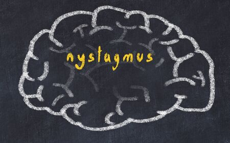 Drawind of human brain on chalkboard with inscription nystagmus.