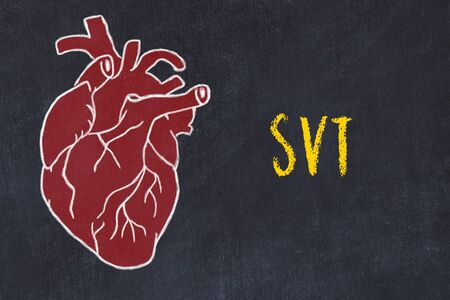 Chalk drawing of a human heart on black chalkboard and inscription SVT