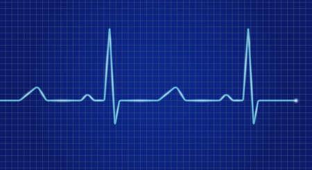 Cardiogram cardiograph oscilloscope blue screen. Heartbeat line. Vector illustration