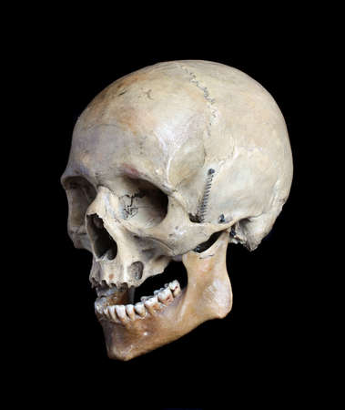 Skull of the person close up on a black background Stock Photo - 6556046