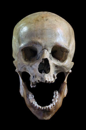 tete de mort: Cr�ne de la personne sur un fond noir. Banque d'images