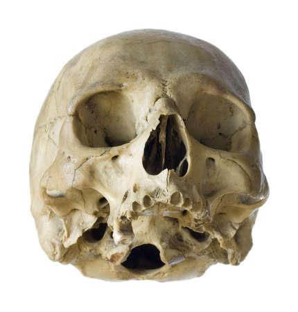 Human skull isolated on a white background. photo