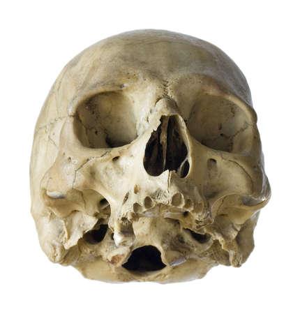 brainpan: Human skull isolated on a white background. Stock Photo
