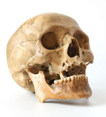 esqueleto humano: Cráneo humano sobre un fondo blanco.