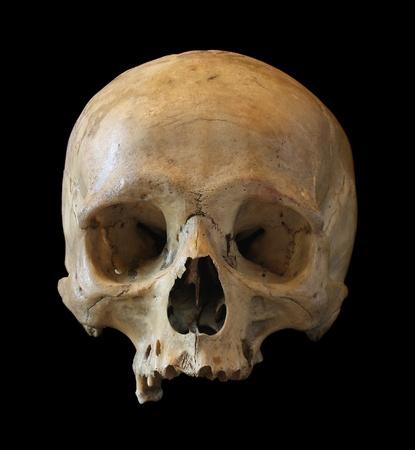 tete de mort: Cr�ne de la personne close-up sur un fond noir. Banque d'images