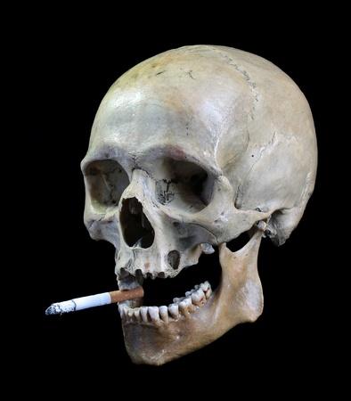 Schedel met een cigarette.Skull van de persoon met een sigaret in een tanden.