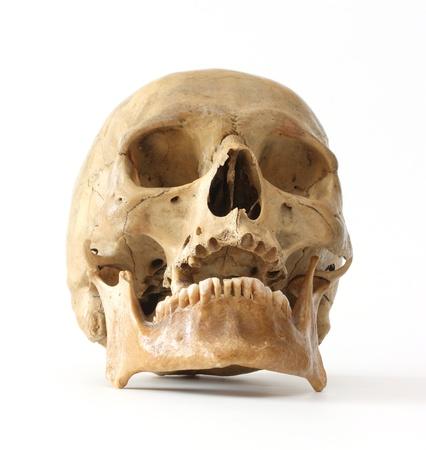 tete de mort: Cr�ne humain sur un fond blanc.