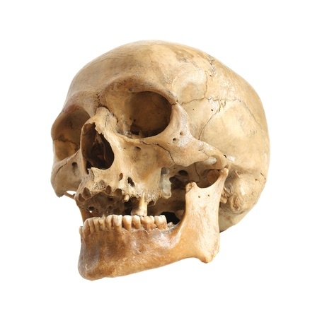 human bone: Skull of the person on a white background.