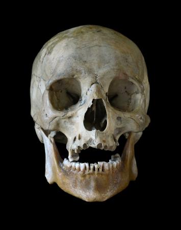 zakelijk: Menselijke schedel geïsoleerd op een zwarte achtergrond.