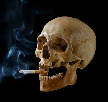 Cr�neo humano que fuma un cigarrillo en un fondo negro. photo
