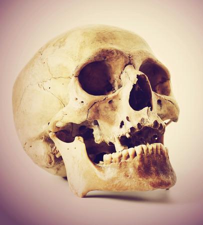 cranium: Skull of the person  Stock Photo