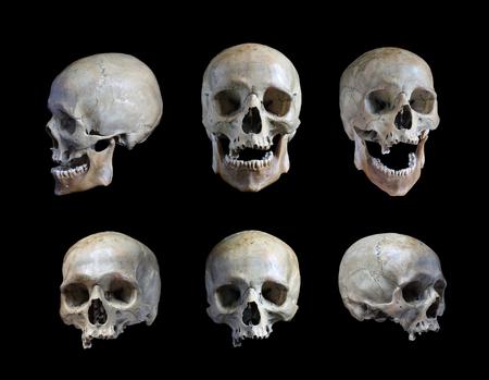 El cráneo de la persona sobre un fondo negro Foto de archivo - 65828697