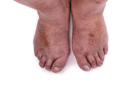 pus: Un uomo con una diagnosi di poliartrite fase grave. La clinica locale diagnosticato incapacità di trattare la malattia in questa fase. Russia.