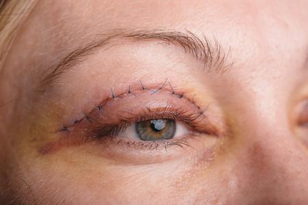 Blepharoplastie van het bovenste ooglid. Een operatie die het teveel lelijke huid van de oogleden boven de ogen verwijdert. De foto's tonen naden. Dit is de derde dag na de operatie.