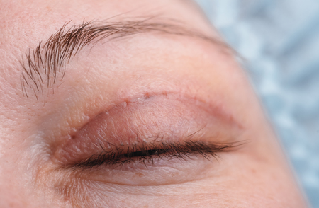Blepharoplasty of the upper eyelid. An operation that removes the excess ugly skin of the eyelids above the eyes. The photo shows that the seams have already been removed. The scar heals. This is the seventh day after the operation.