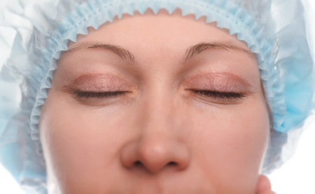 Blepharoplasty of the upper eyelid. An operation that removes the excess ugly skin of the eyelids above the eyes. The eyes are closed. Photos are taken at different times to track the healing process of the skin. Two months after the operation. Stockfoto