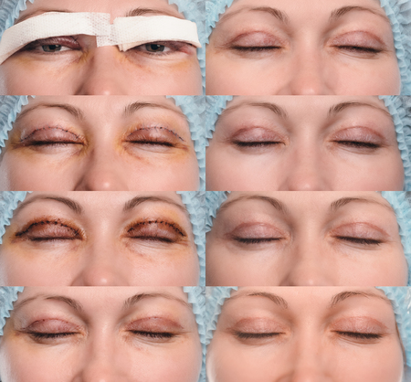 Blepharoplasty of the upper eyelid. The photo shows the progress of healing of the scar and recovery of the patient. Closed eyes on the first, third, fifth, ninth, eleventh day, the first and second month after the operation.