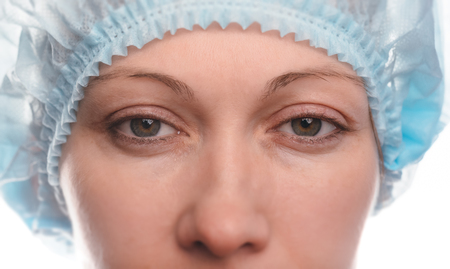 Blepharoplasty of the upper eyelid. An operation that removes the excess ugly skin of the eyelids above the eyes. Eyes are open. Photos are taken at different times to track the healing process of the skin. Two months after the operation.