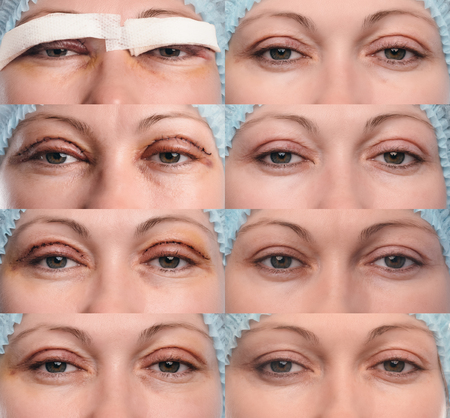 Blepharoplasty of the upper eyelid. The photo shows the progress of healing of the scar and recovery of the patient. Open eyes on the first, third, fifth, ninth, eleventh day, the first and second month after the operation.