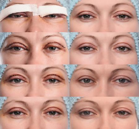 Blepharoplastik des oberen Augenlids. Das Foto zeigt den Fortschritt der Heilung der Narbe und die Genesung des Patienten. Öffnen Sie die Augen am ersten, dritten, fünften, neunten, elften Tag, dem ersten und zweiten Monat nach der Operation. Standard-Bild