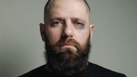 Portrait of a middle-aged mixed martial arts fighter after the tournament. A bearded, bald man with a black eye under his left eye. The concept of annoying defeat